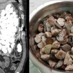 Извлечённые из кишечника камни