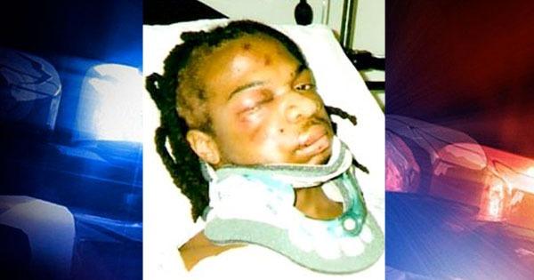 Джамал Фримена после избиения полицейскими